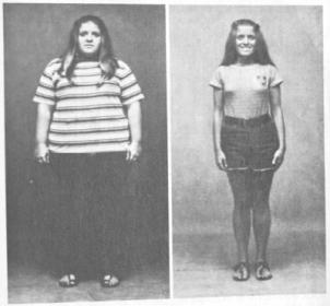 A Rizs Diéta Hatása